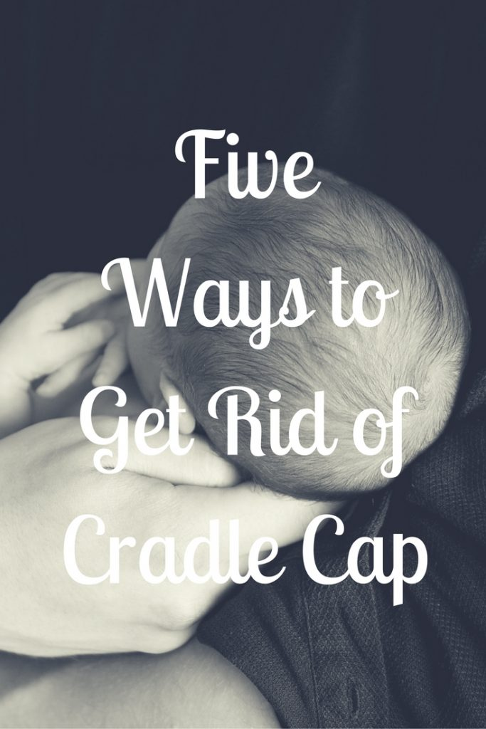 five-ways-to-get-rid-of-cradle-cap