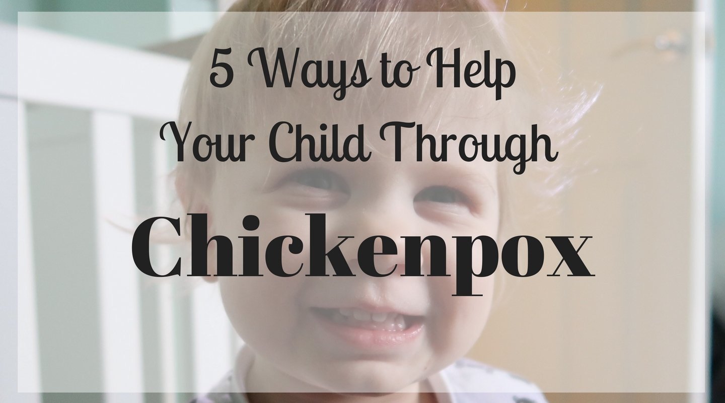 5 Ways to Help Your Child Through Chickenpox