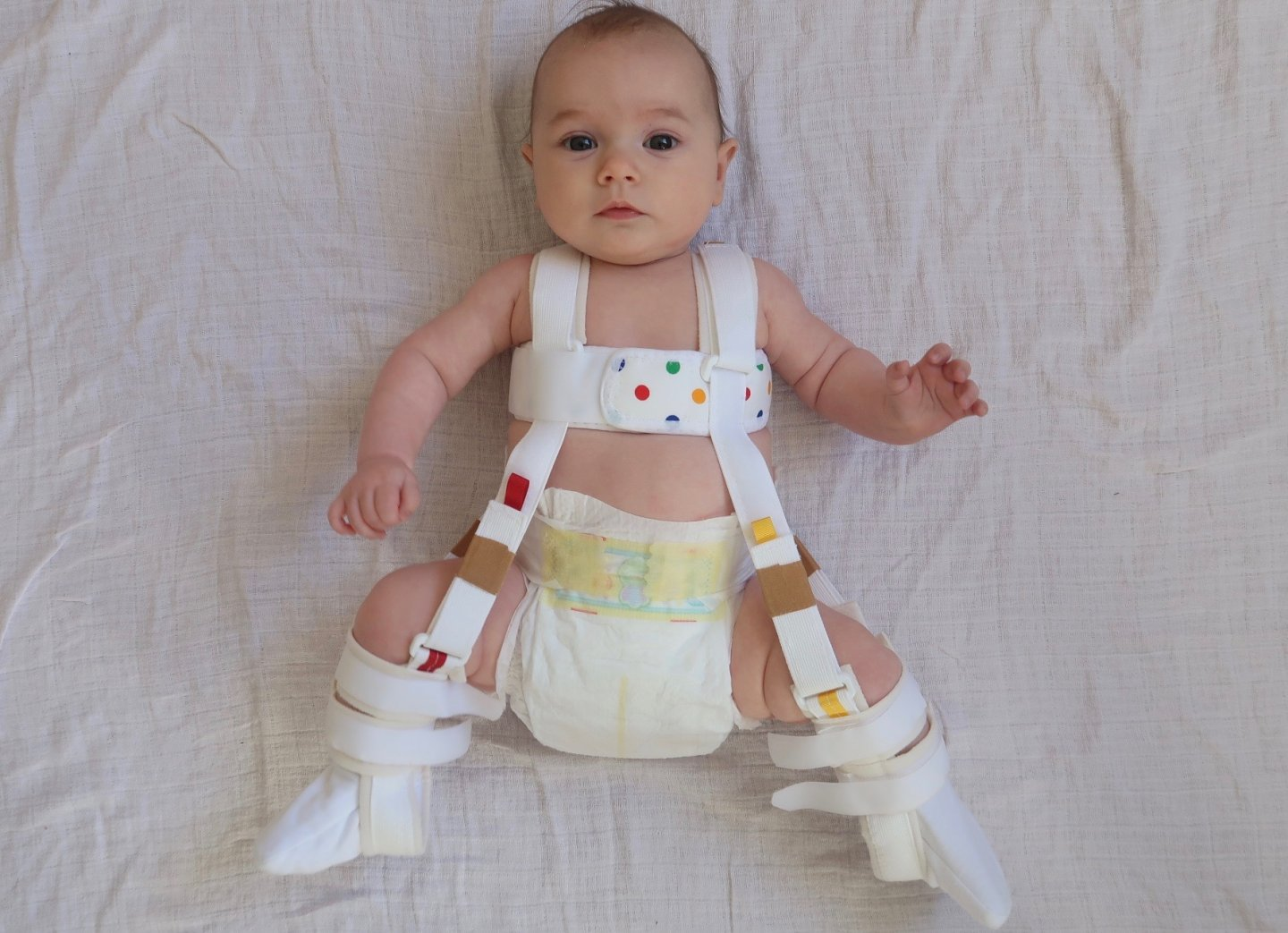 baby wearing Pavlik harness